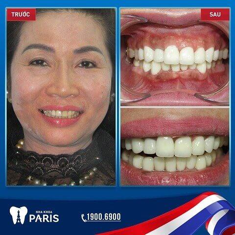 Bọc răng sứ là gì? Những thay đổi của khách hàng khi bọc răng sứ tại Nha khoa Paris