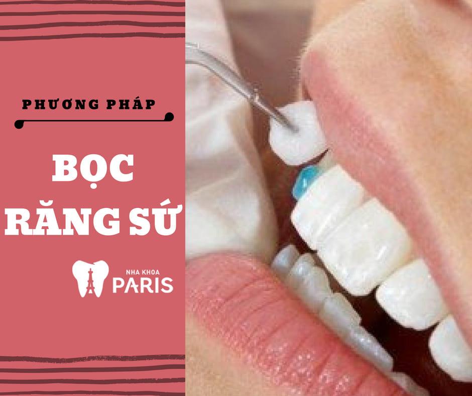 Các Phương Pháp trồng răng khểnh giả có ĐAU không? 3