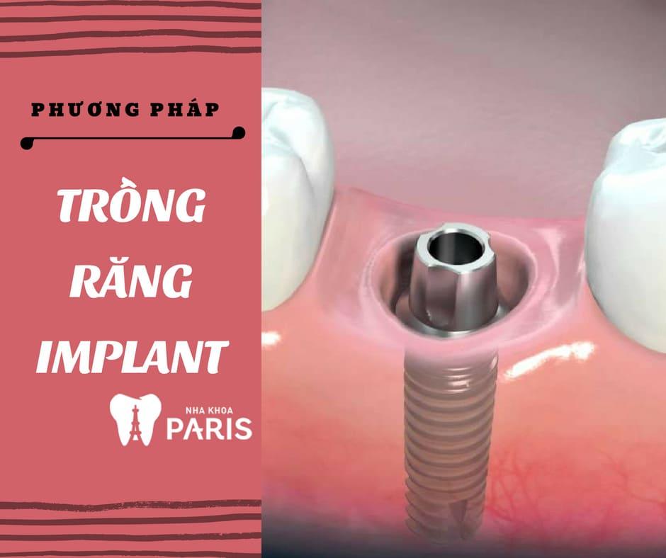 Các Phương Pháp trồng răng khểnh giả có ĐAU không? 2