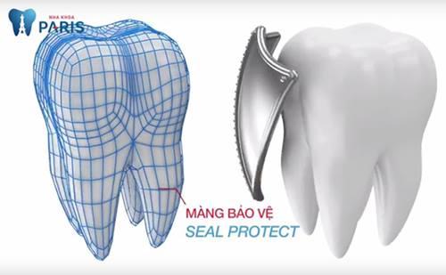 Có nên bọc răng sứ thẩm mỹ không? Chia sẻ thực tế từ khách hàng 4