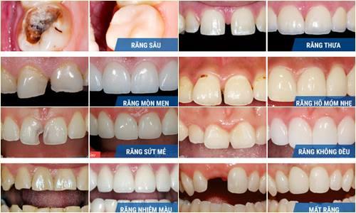 Có nên bọc răng sứ thẩm mỹ không? Chia sẻ thực tế từ khách hàng 2