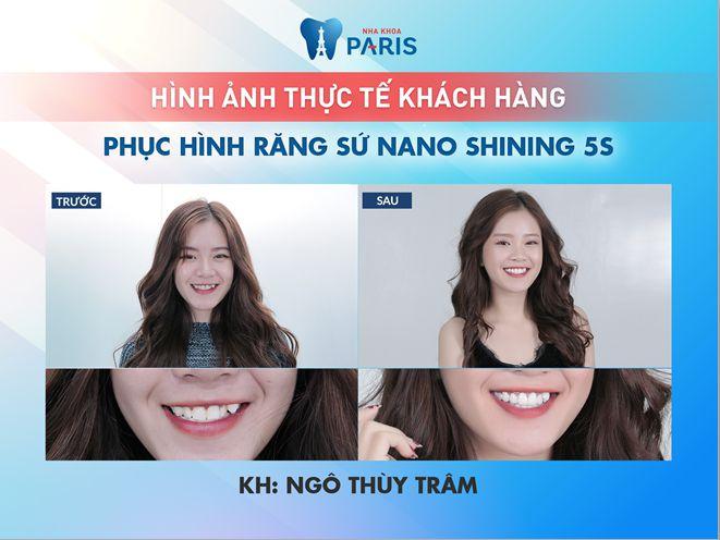 Có nên bọc răng sứ thẩm mỹ không? Chia sẻ thực tế từ khách hàng 5