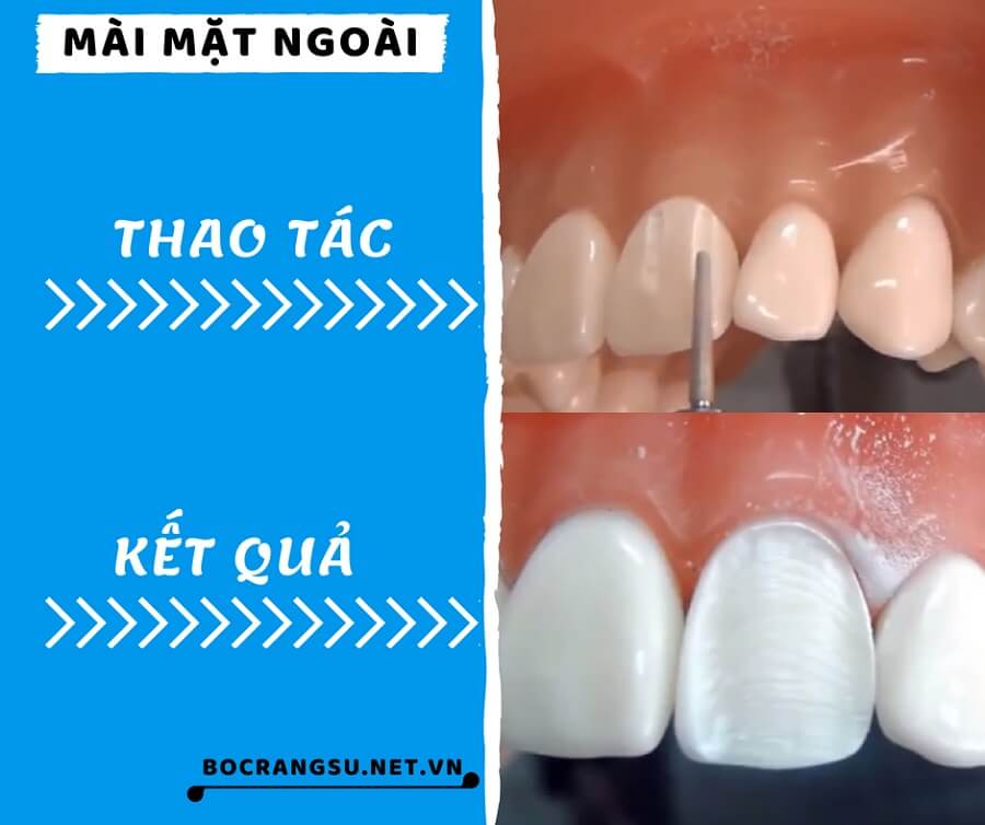 """Quá trình mài răng theo các bước """"KHÔNG ĐAU"""" CHUẨN tỉ lệ cụ thể 1"""