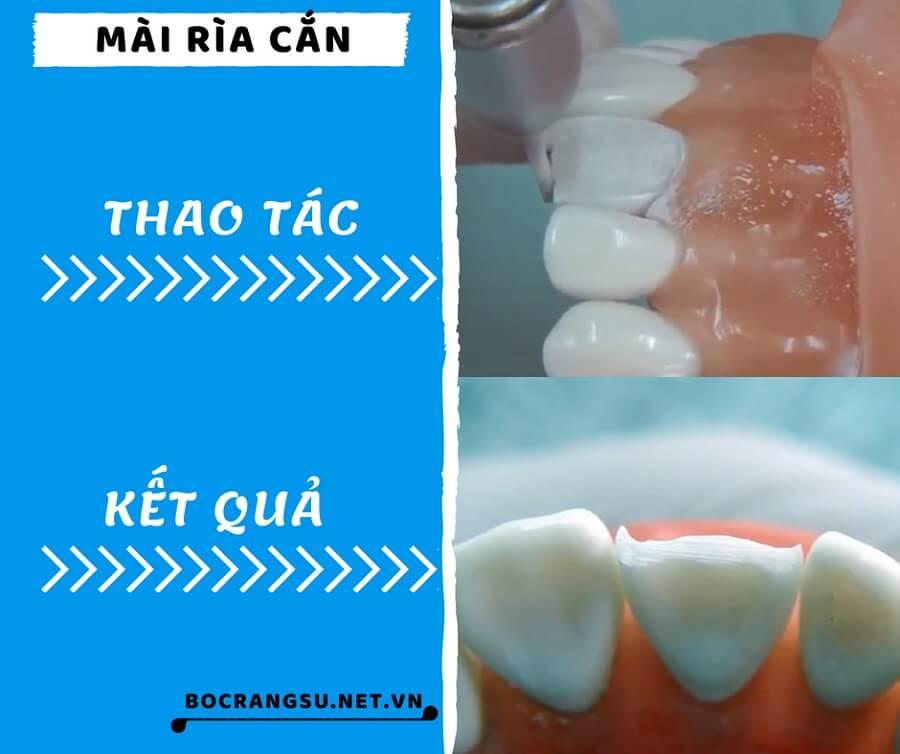 """Quá trình mài răng theo các bước """"KHÔNG ĐAU"""" CHUẨN tỉ lệ cụ thể 2"""