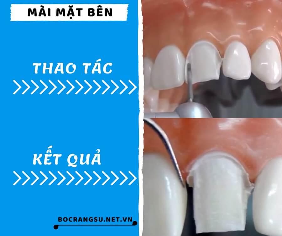 """Quá trình mài răng theo các bước """"KHÔNG ĐAU"""" CHUẨN tỉ lệ cụ thể 3"""