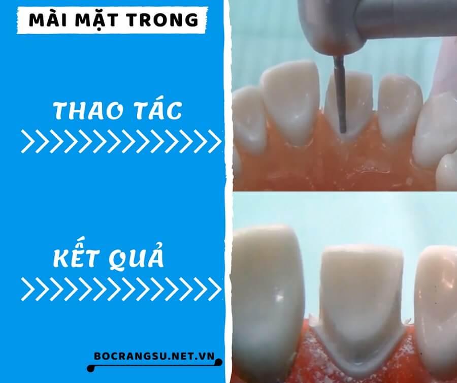 """Quá trình mài răng theo các bước """"KHÔNG ĐAU"""" CHUẨN tỉ lệ cụ thể 4"""
