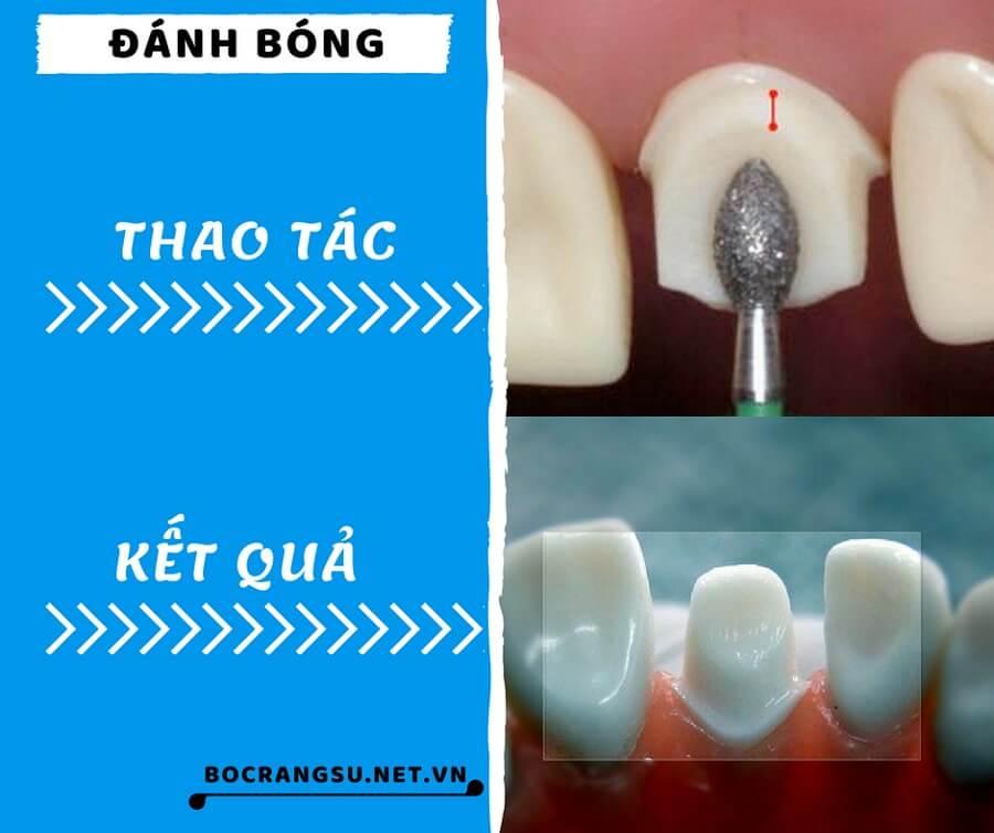 """Quá trình mài răng theo các bước """"KHÔNG ĐAU"""" CHUẨN tỉ lệ cụ thể 5"""