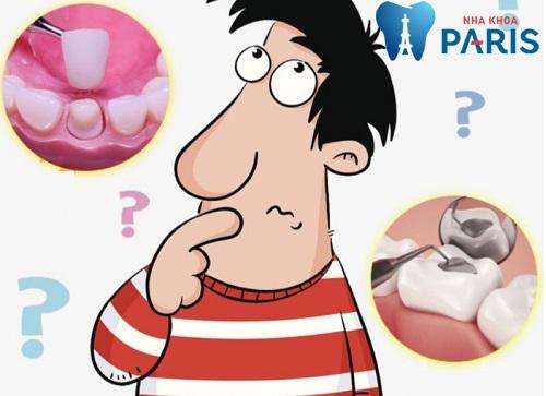 Mài răng sứt nên bọc sứ hay trám răng thì Đảm Bảo BỀN ĐẸP nhất? 1