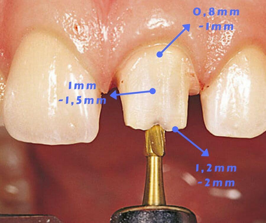 Mài răng sứt nên bọc sứ hay trám răng thì Đảm Bảo BỀN ĐẸP nhất? 3