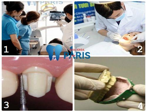 Bọc răng sứ mất bao lâu là hợp lí ?
