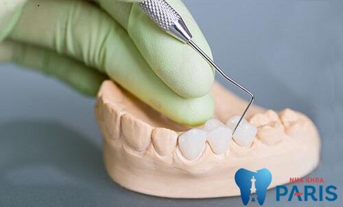 Bọc răng sứ mất bao lâu? Bọc răng sứ nha khoa Paris