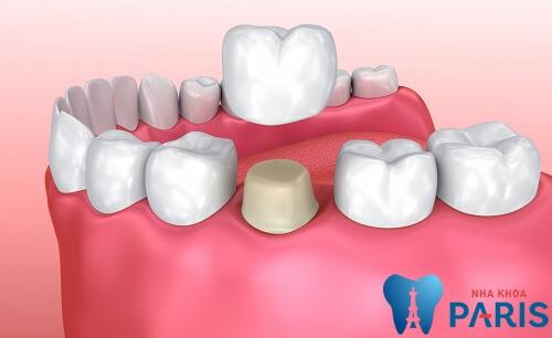 Bọc răng sứ mất bao lâu? Quá trình bọc răng sứ có gây đau không? 3