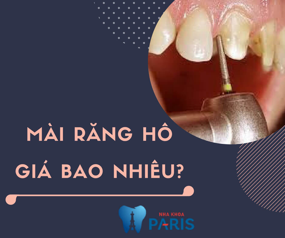 [GIẢI ĐÁP THẮC MẮC] Mài răng hô giá bao nhiêu tiền hiện nay? 1
