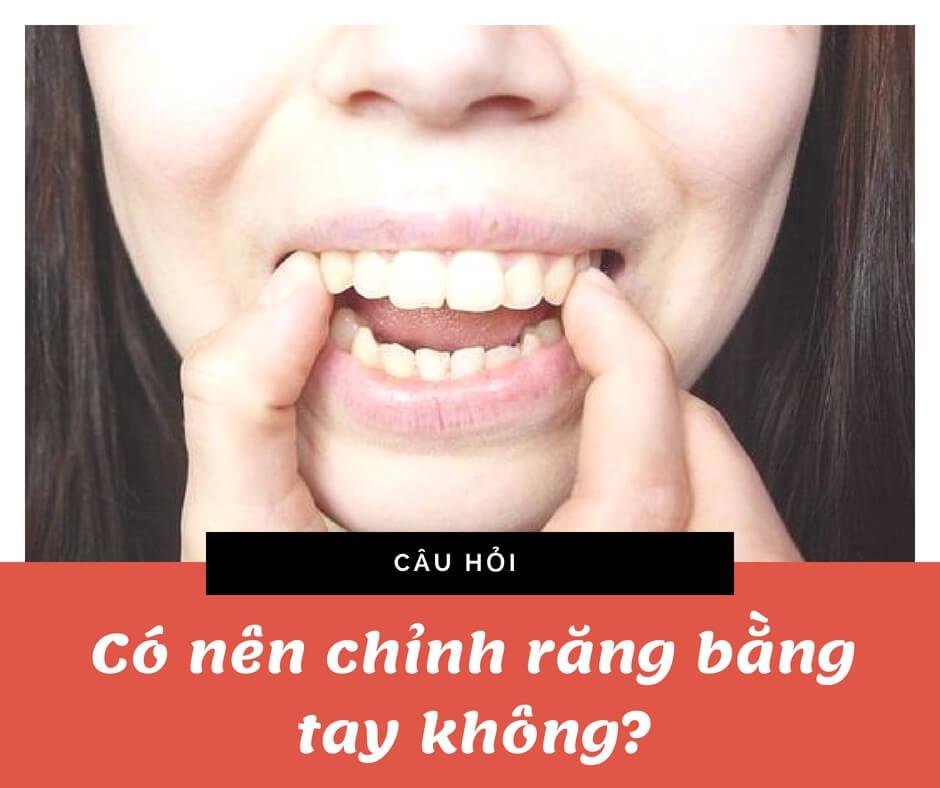 Hỏi - đáp những vấn đề liên quan đến răng cửa thưa 3