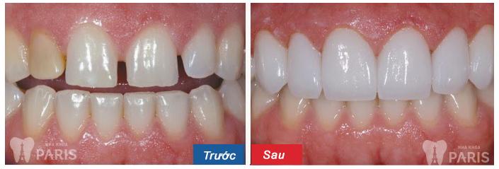 Hỏi - đáp những vấn đề liên quan đến răng cửa thưa 6