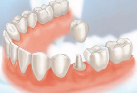 Phục hồi răng cửa bị mẻ bằng phương pháp bọc răng sứ là tốt nhất