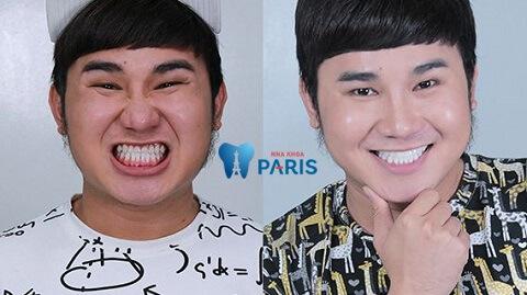Diễn viên Tiko Tiến Công trước và sau khi bọc răng sứ khắc phục hàm răng vàng ố, xỉn màu.