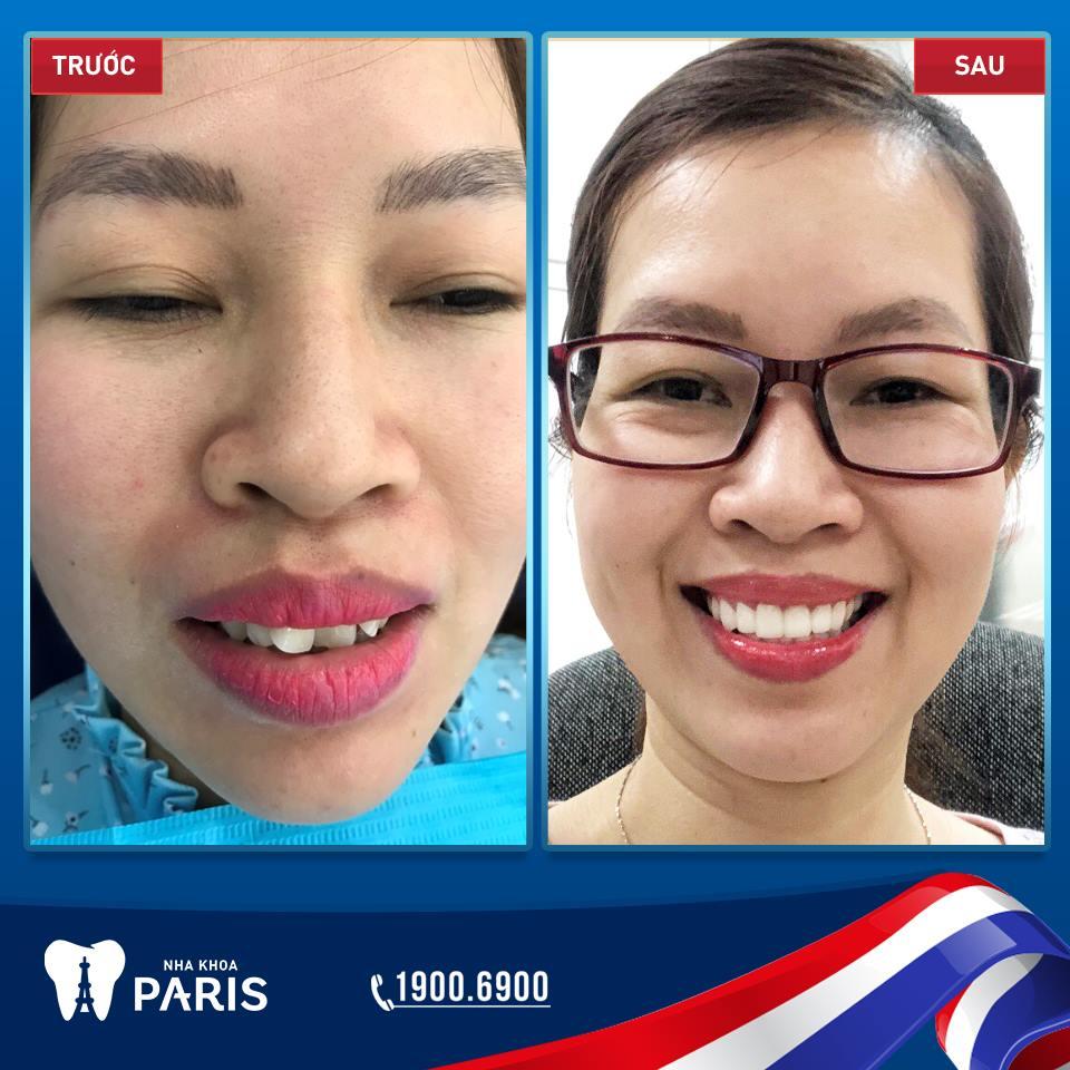 Khách hàng Nguyễn Thị Lý bọc răng sứ Cercon khắc phục tình trạng răng lểnh khểnh, hô nhẹ tại Nha khoa Paris.