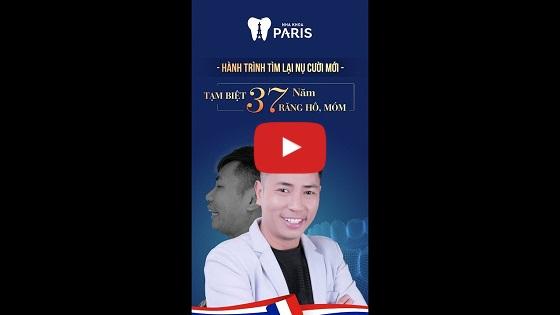 Khách hàng Đức Lộc chia sẻ cảm nhận thực tếsau khi bọc răng sứ tại Nha khoa Paris
