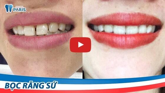Bọc răng sứ tự nhiên với công nghệ Nano Shining 5S