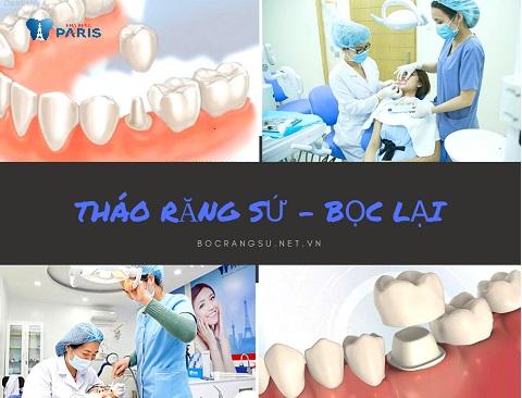 cách khắc phục tình trạng bọc răng sứ bị cộm