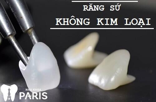 GIẢI ĐÁP: Độ bền của răng sứ thẩm mỹ là bao lâu? 2