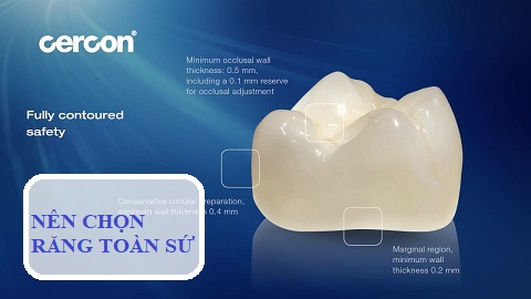 Bọc răng sứ bị hỏng - nên chọn răng toàn sứ để phục hình
