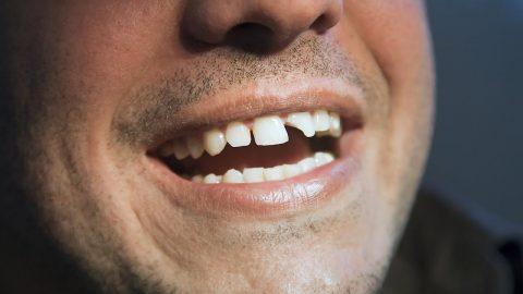 Răng bị mẻ làm sao?