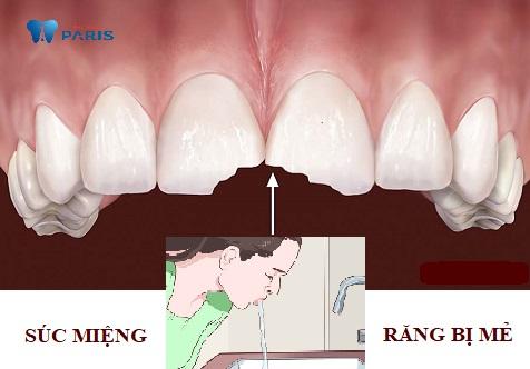 Súc miệng nước muối ngừa viêm sưng, nhiễm trùng vết răng bị sứt mẻ