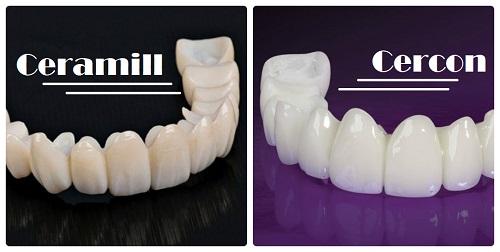 Nên bọc răng sứ Ceramill hay răng sứ Cercon? 1