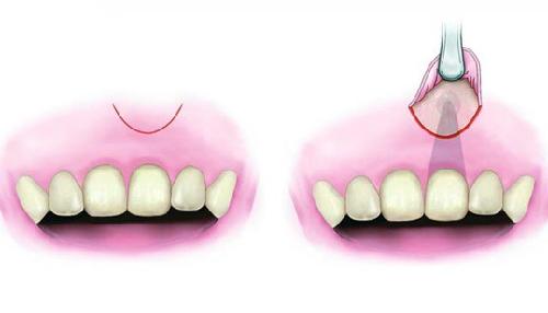Cắt chóp răng có đau không? - Bác sĩ nha khoa tư vấn 2